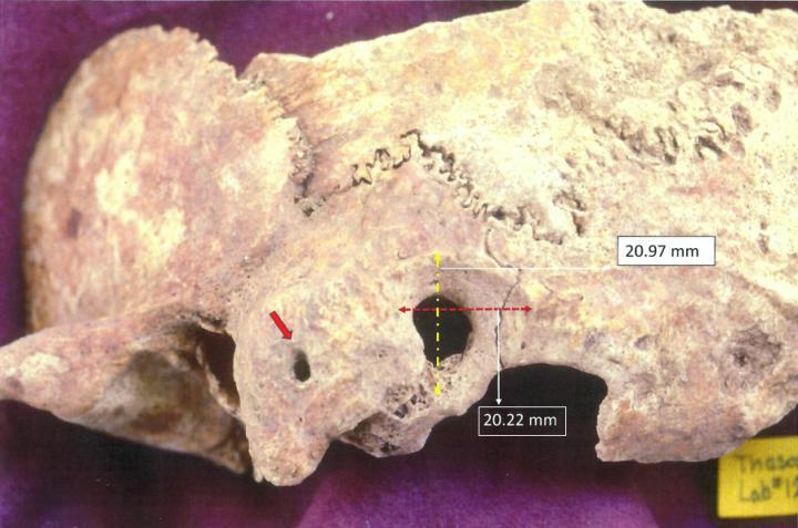 Череп Византийской эпохи - археологическая находка в Греции 2020
